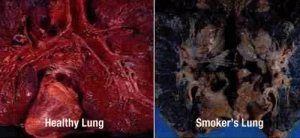 Lungs_2_PIOR_how_smoking_main_banner_221.jpg